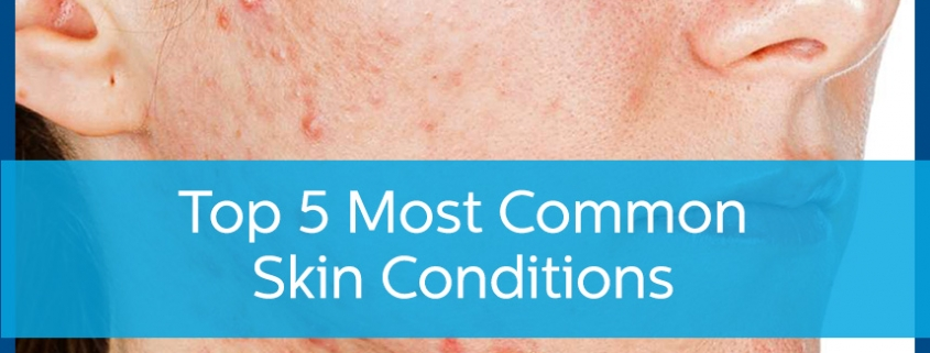 Most Common Skin Conditions