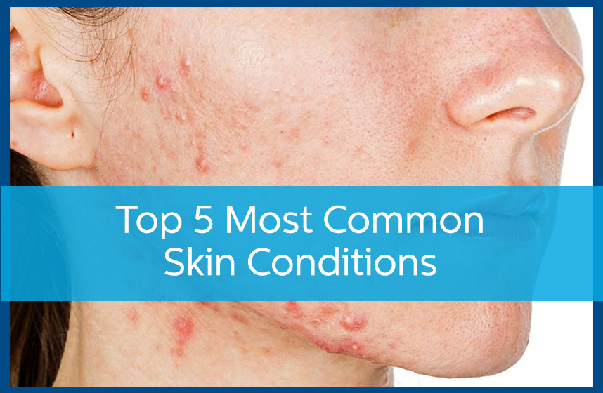 Top 5 Most Common Skin Conditions - Avail Dermatology
