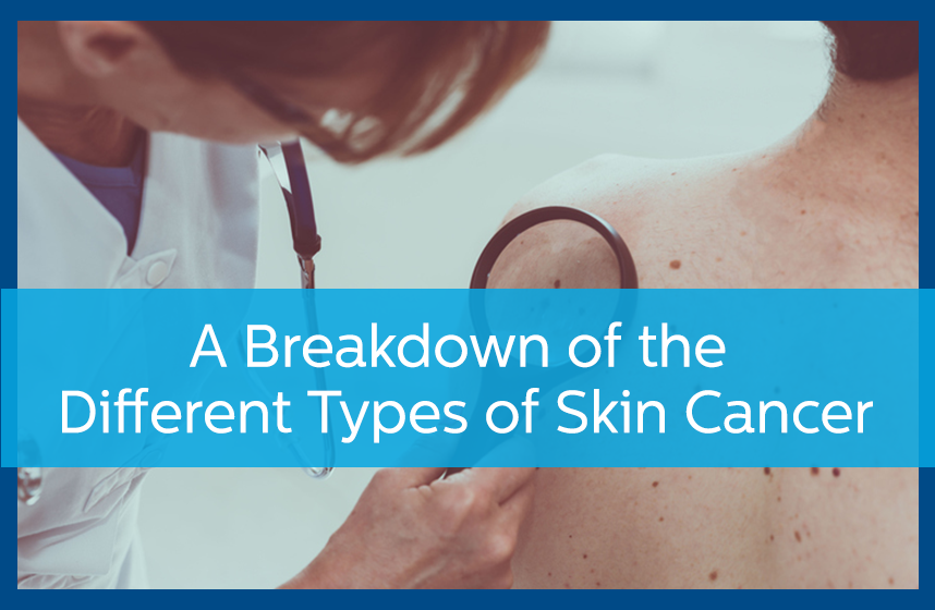 Doctor examining a patient for the different types of skin cancer.