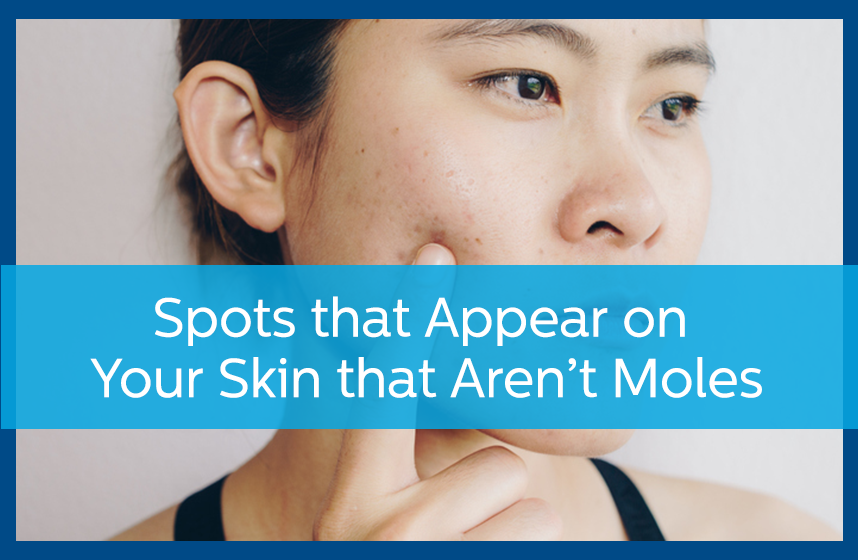 Asian woman pointing out spots that appear on your skin that aren't moles.