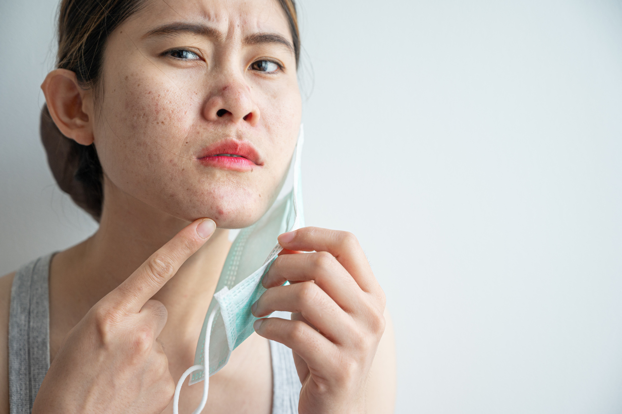 Asian woman worry about acne occur on her face after wearing mask for long time during covid-19 pandemic, wondering how to help decrease mask acne.