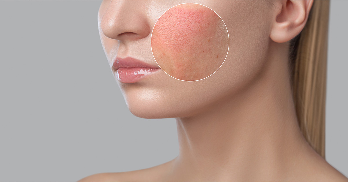 Rash on a female's face vs her face covered with makeup.
